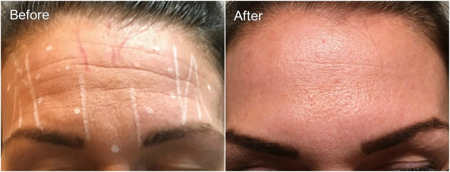 Botox 3 Before and After
