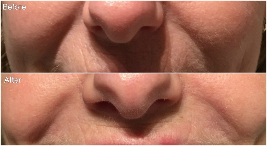 Filler 1 Before and After