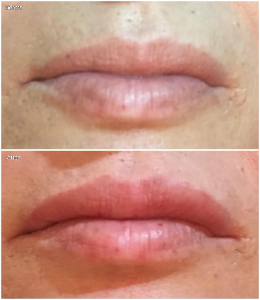 Lips 5 17051